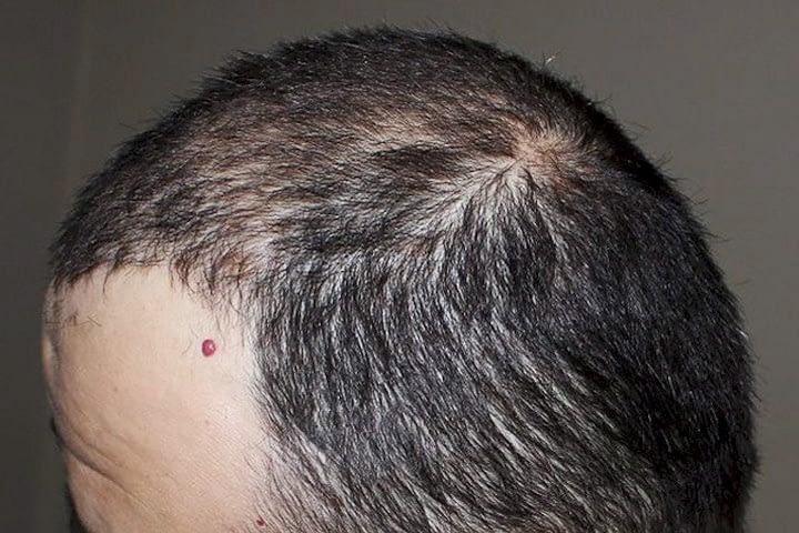 Hajbeültetés után páciens